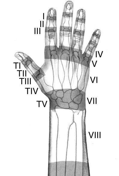 Extensor tendon zones of hand