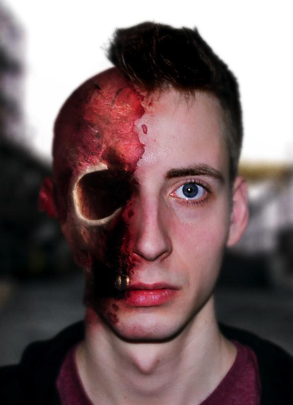 severe facial trauma