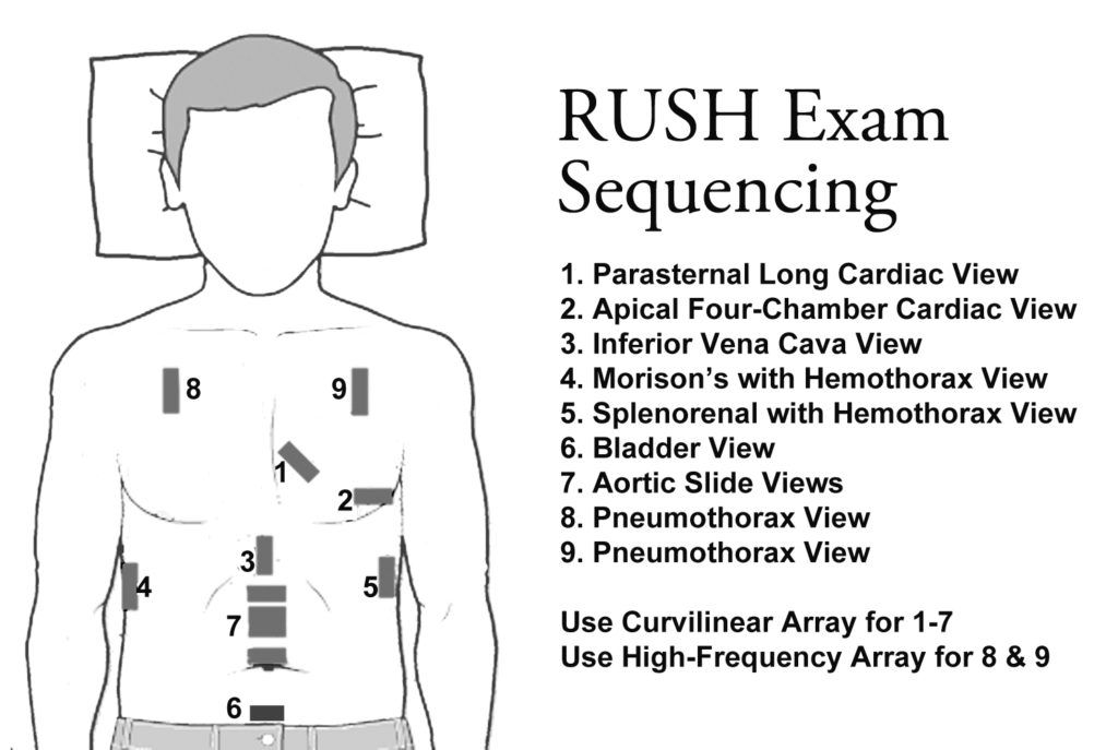 RUSH Exam Sequencing