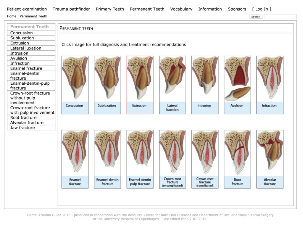 Dental Trauma Guide pic
