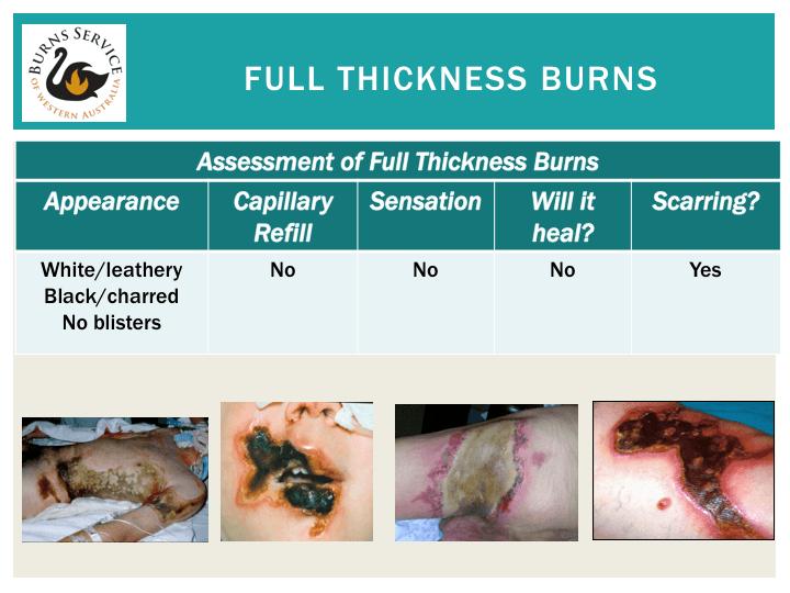 Full thickness burns