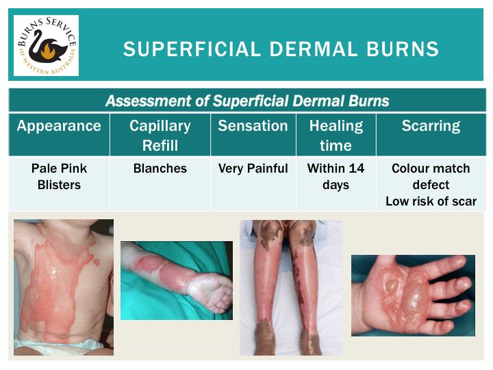 Superficial dernal burns