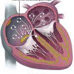 CME 09/06/16 – Acute AF with Tachycardia Mx
